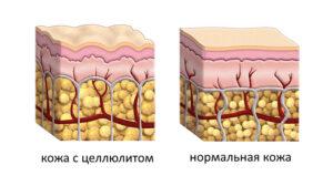 Строение кожи с целлюлитом и без